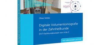 Neue Möglichkeiten in der zahnmedizinischen Diagnostik im neuen Spitta-Fachbuch praxisorientiert aufbereitet