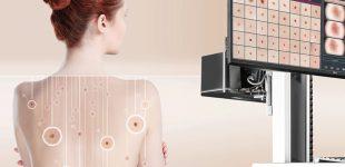 FotoFinder stellt die nächste System-Generation zur Früherkennung von Hautkrebs vor