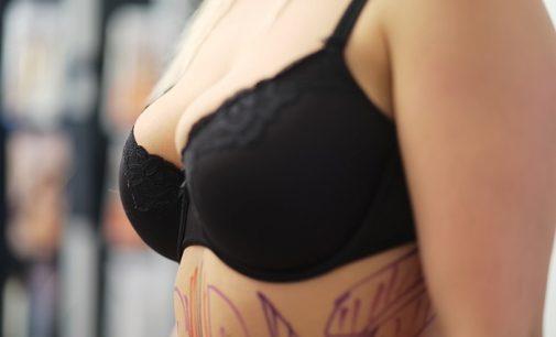 Brustvergrößerung – Instagram haftet für Implantate?
