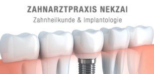 Zahnarzt Dr. Nekzai Hamburg: Allgemeine Informationen über Zahnimplantate