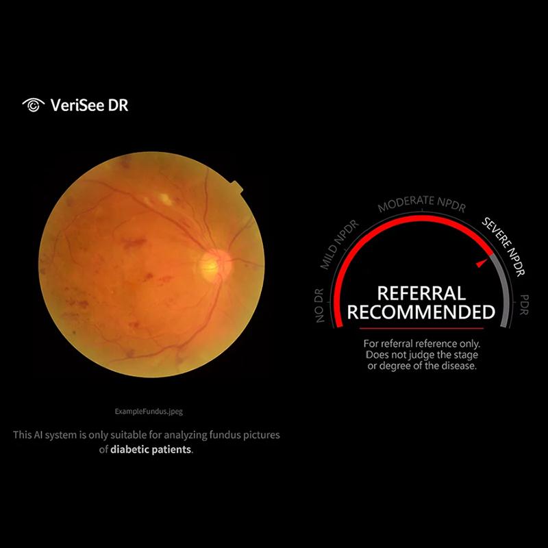 VeriSee DR von Acer Healthcare diagnostiziert diabetische Retinopathie mit künstlicher Intelligenz
