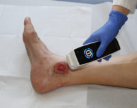 Neue Technik ist die Hoffnung für 3 Millionen Patienten mit offenen Wunden